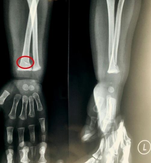 Broken Wristt